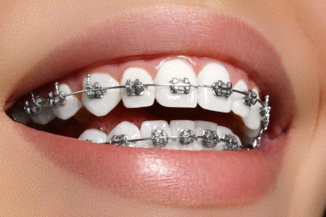 A manutenção do aparelho dentário na Irlanda não é tão diferente que no Brasil. Crédito: Shutterstock